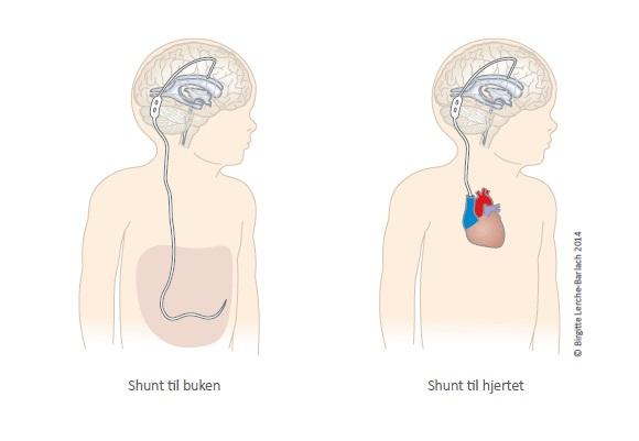Illustrasjon av shunt til buken og til hjertet