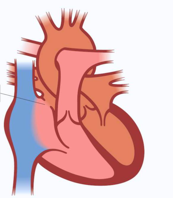 Illustrasjon av hjertet ADS