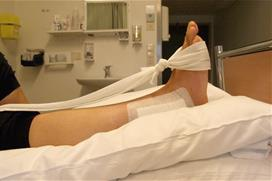 Fot med operert ankel som er bøyd og slakt bånd. Foto