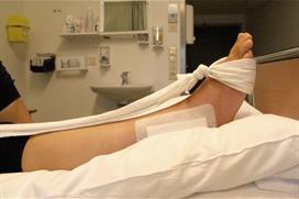 Fot med operert ankel i avslappet stilling. Foto