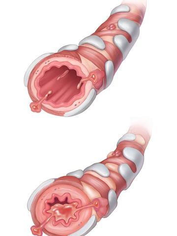 Illustrasjon av normalt luftrør og løftrørunder astmaanfall