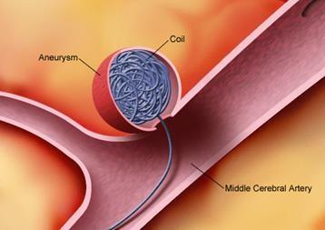 Illustrasjon av tynne metalltråder som føres gjennom innsiden av en blodåre