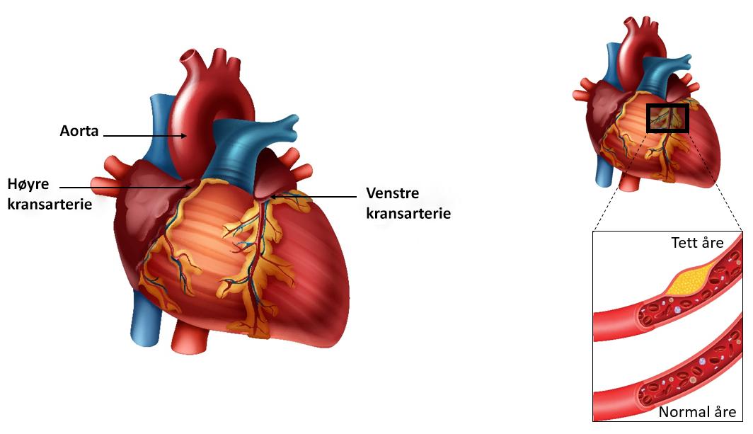 Illustrasjon av hjertets anatomi.