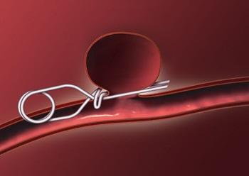 Illustrasjon av klips/klemme på utposning i en blodåre