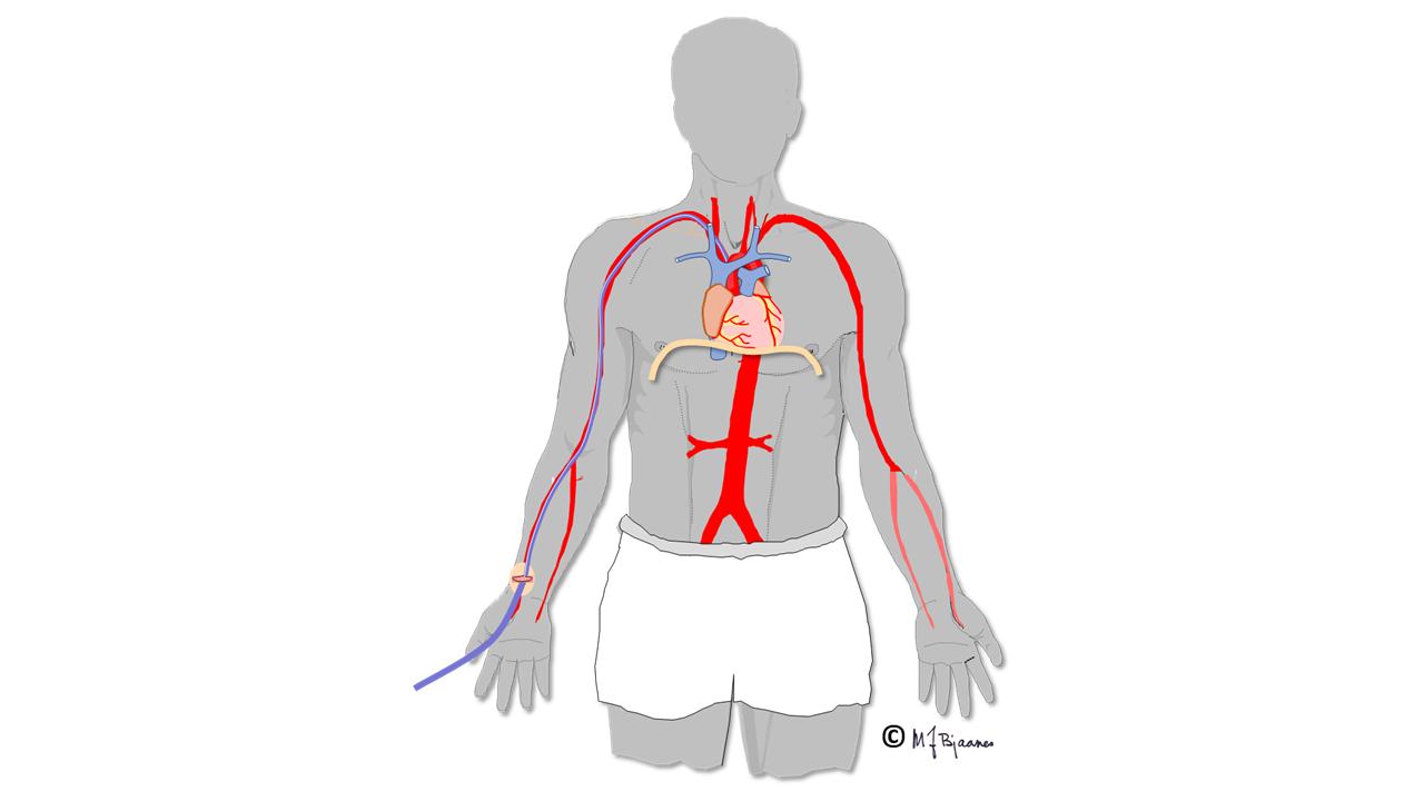Tegning av blodårer inne i kroppen