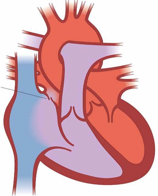 Illustrasjon av hjertet PFO