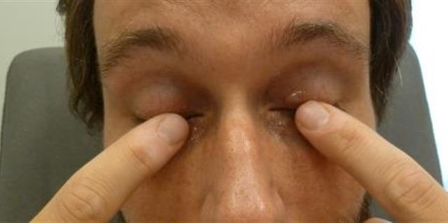 Salve på øyelokk