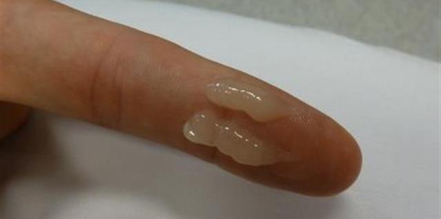 Salveutstyr på finger
