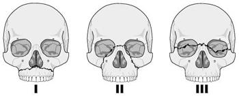 På bildet ser du hovedinndelingen av brudd i midtansiktet, en inndeling som heter Le Fort I, II og III.