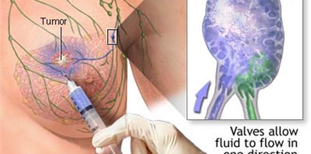 Bildet viser hvordan vaktpostlymfeknutemerkingen foregår.