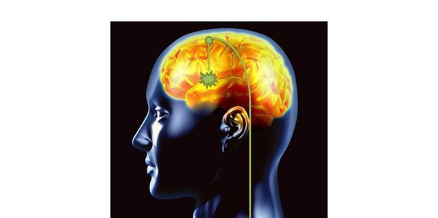 Illustrasjonsfoto av en hjerne og hvordan elektrodene skal plasseres for å få til hjernestimuleringen.