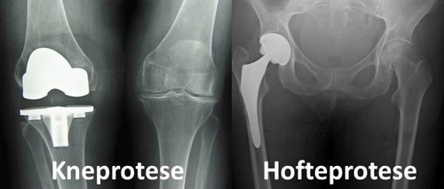 Leddproteser nye stolav.no.jpg