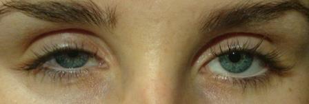 Bildet viser øynene til en person hvor det ene øyelokket tydelig henger ned i synsfeltet. Foto.