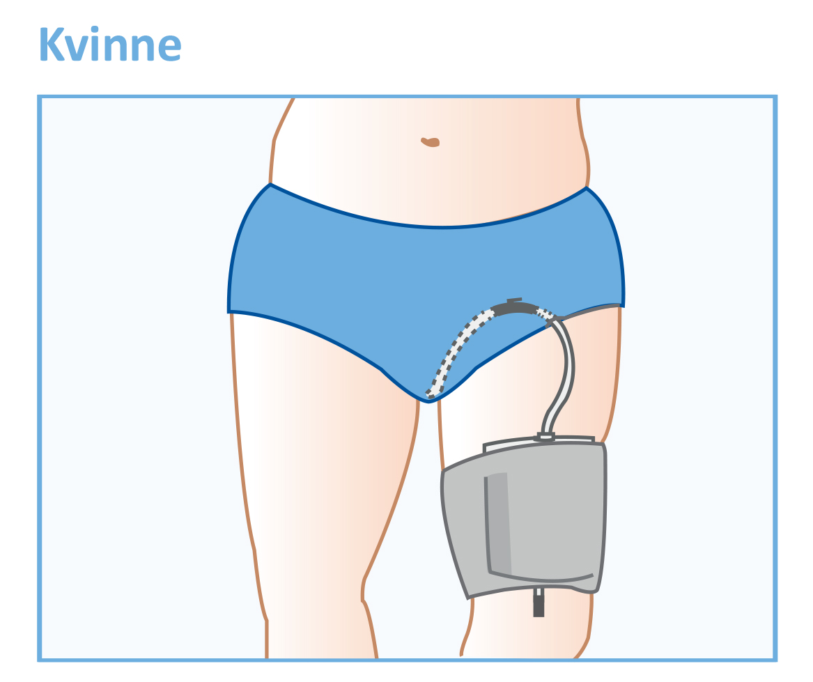Urinkateter - kvinne