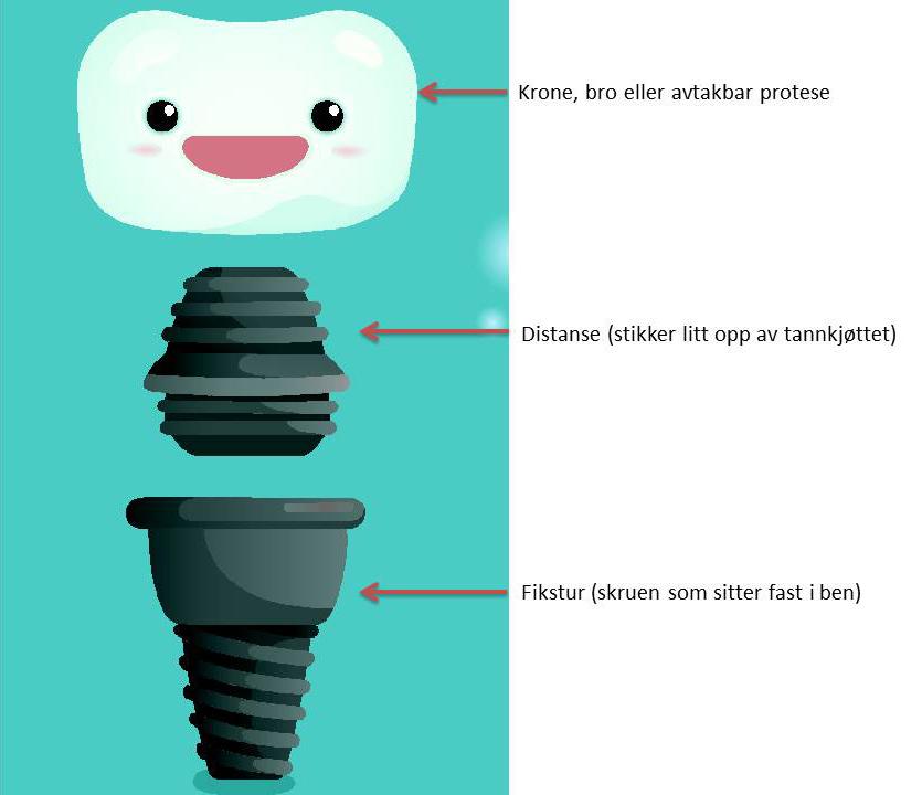 Illustrasjonen viser hvordan et tannimplantat er delt inn i tre deler. Fikstur, distanse og krone.