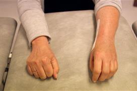 En hånd knytt, andre avslappet. Foto