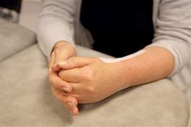 Frisk hånd presser lett på knytt operert hånd for å få fingre inn i håndflaten. Foto