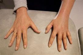 Hender med håndflate ned mot benk, sprikende fingre. Foto