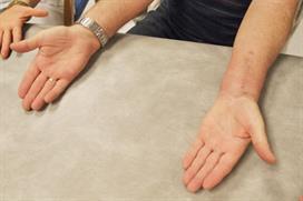 Håndflater vender opp. Foto