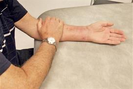 En arm hviler med håndflaten ned. Frisk arm hjelper skadd arm. Foto