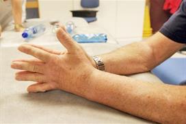 Håndflater samlet, sett fra siden. Foto