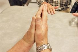 Håndflater samlet sett forfra. Foto