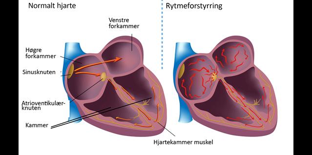 illustrasjon hjerterytmeforsyrrelser