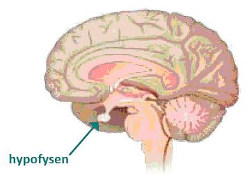 Fotoet viser at adenomet ligger plassert under hjernen, inne i skallen