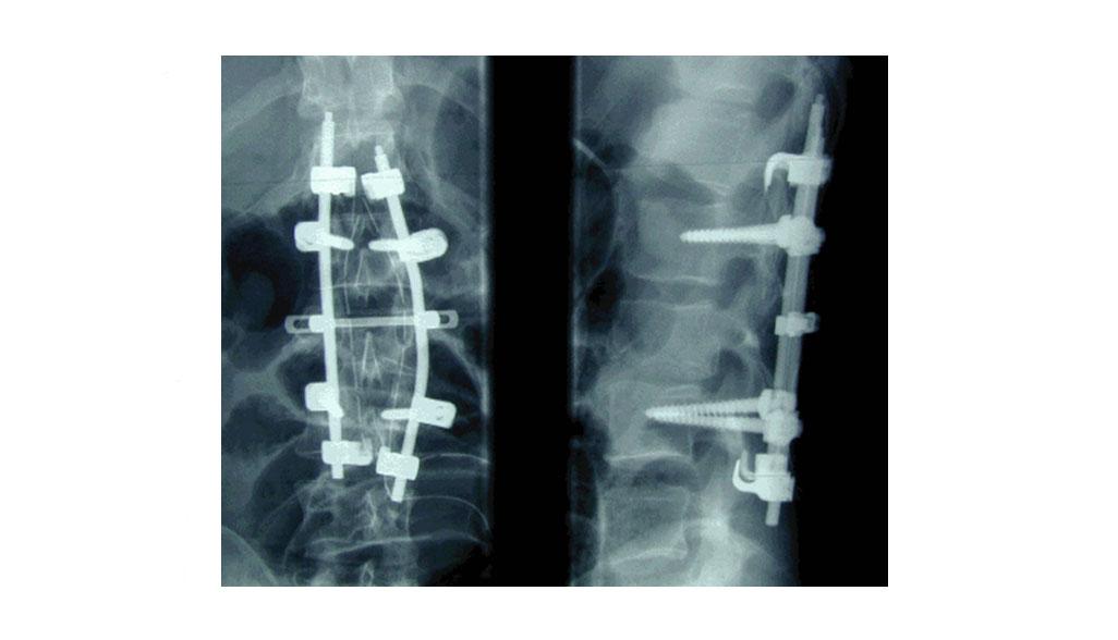 Røntgen - ryggbrudd