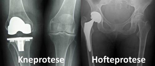 Røntgenbilde kneprotese og hofteprotese